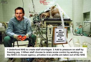 Hunt's heart surgery 1